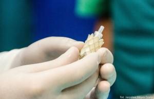 Na zdjęciu: Wydruk tętnicy płucnej Jacka Czerepaka